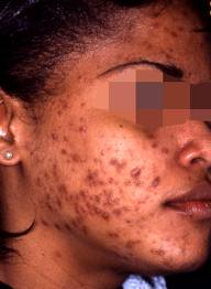 Dark spots caused by acne.